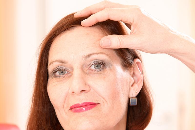 Augenlidplastik